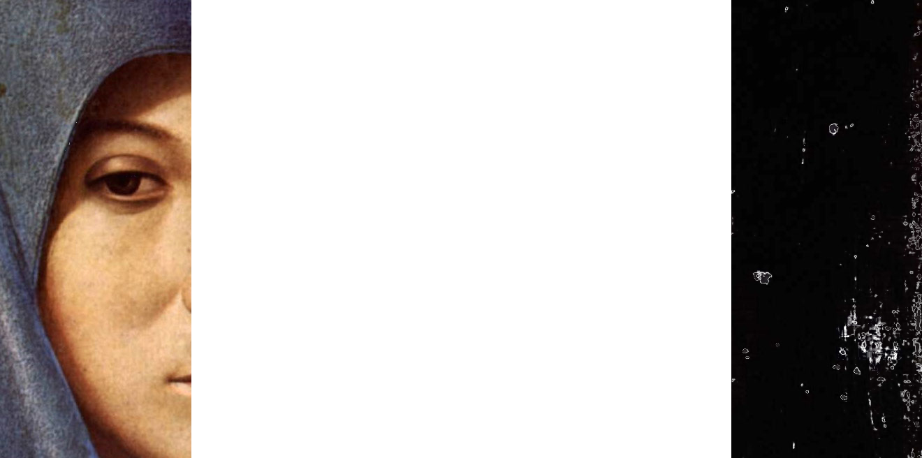 anto1